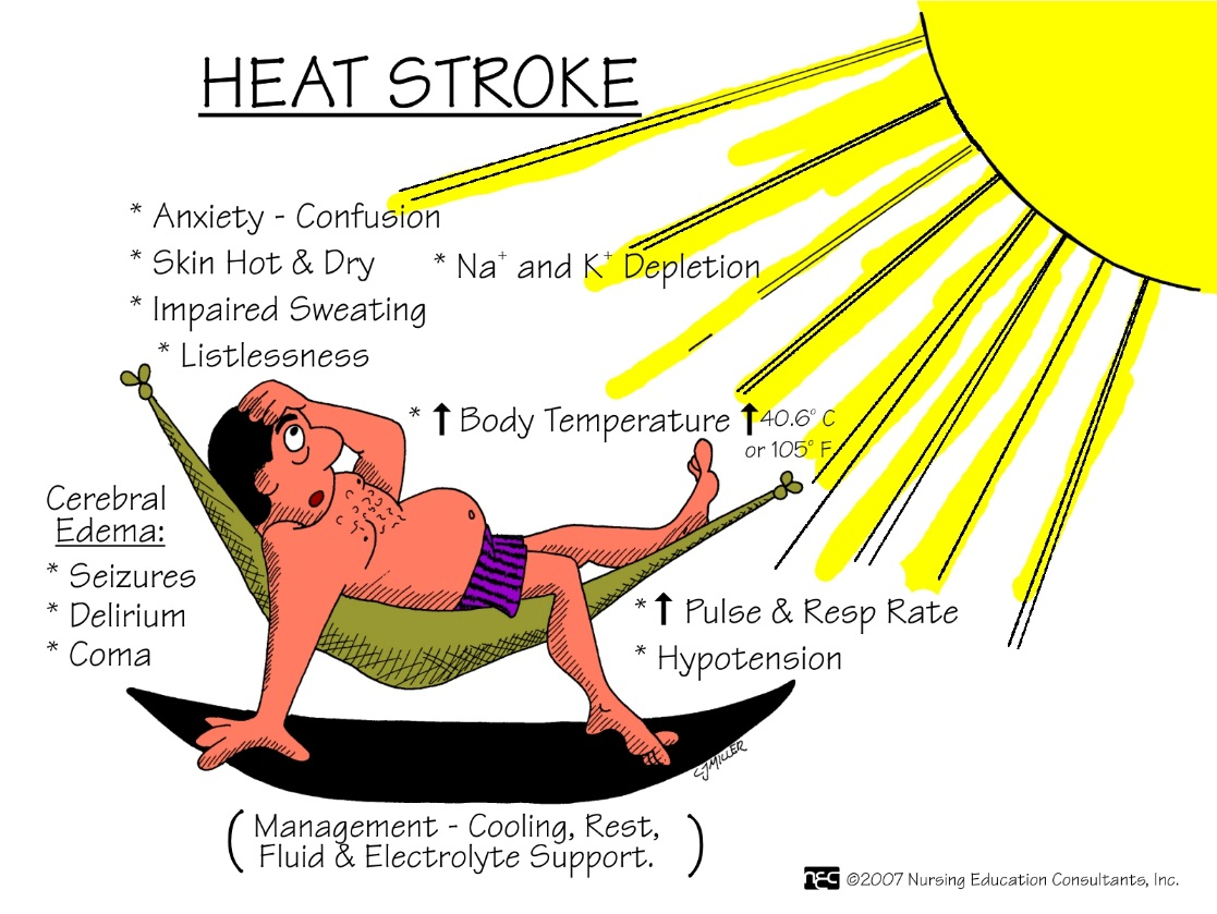 summer-sun-problems-stroke