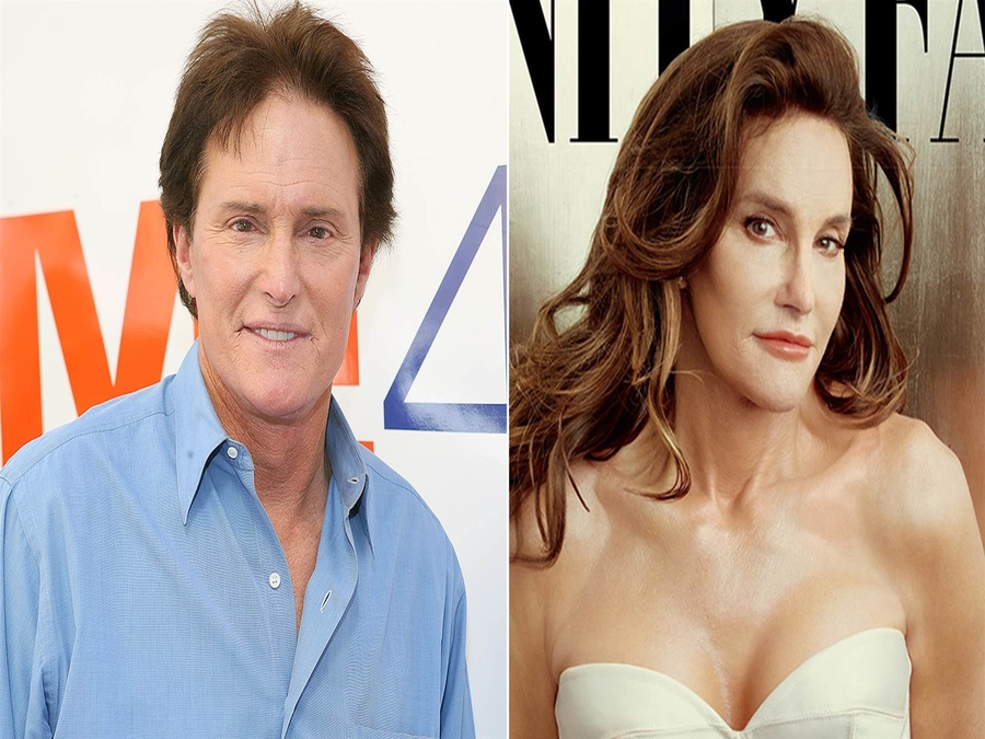 Photo of 4 Famous Celebrities You Didn't Know Have FAKE Body Parts