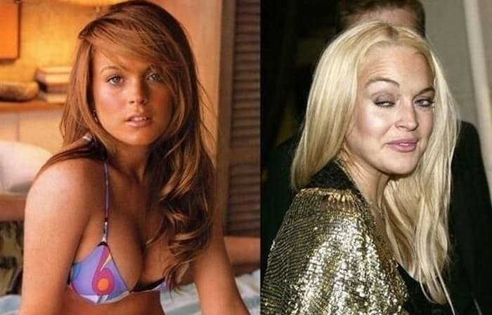 Photo of 6 Botched Cosmetic Surgeries That Ruined Beauty of Famous People