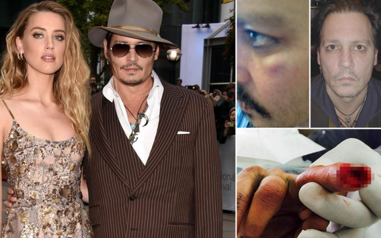 Amber Heard Case With Johnny Depp