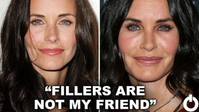 Photo of 10 Celebs Who Regret Their Plastic Surgery Disasters